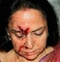 Hema Malini's Car Meets with Accident