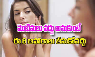 8 Foods To Avoid If You Have Pimples---