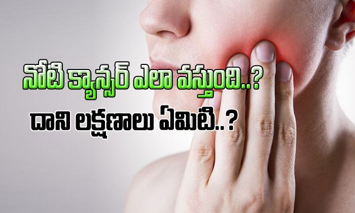 Signs and symptoms of oral cancer-