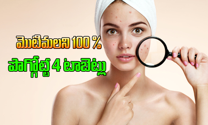 4 tablets for 100% acne treatment-,