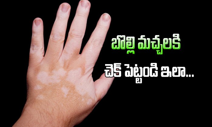 vitiligo controled with only Ayurveda treatment-,