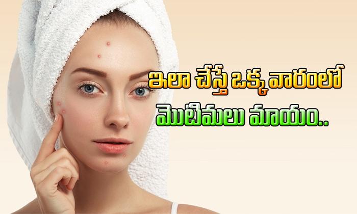 Simple Tip To Get Rid Of Pimples- Telugu