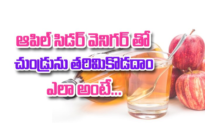 Apple Cider Vinegar Remedies For Dandruff- Telugu