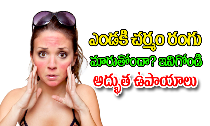 Sun Burn - Prevention And Cure--Sun Burn - Prevention And Cure-