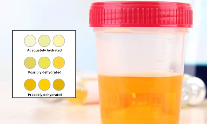 Urine Dark Colour Diseases--