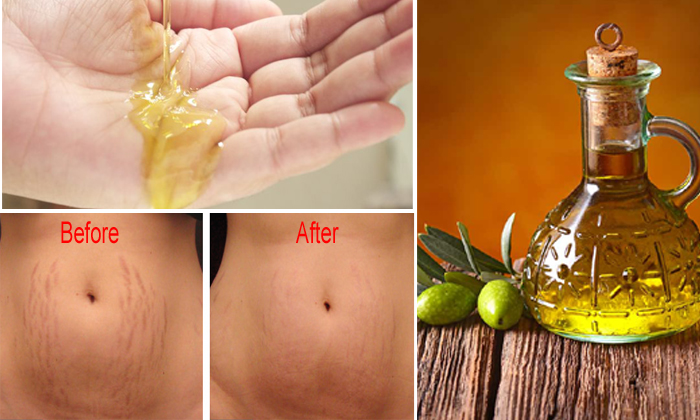 How To Get Rid Of Stretch Marks Using O Oil--How To Get Rid Of Stretch Marks Using Olive Oil-