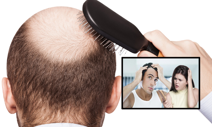 Male Pattern Baldness And Other Causes--Male Pattern Baldness And Other Causes-