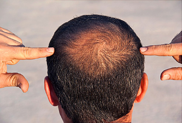 Male Pattern Baldness And Other Causes-