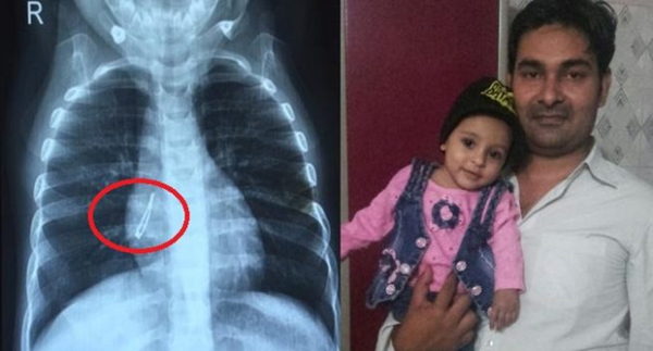 LED Bulb Found In Child's Lungs. Doctors Remove It 2 Minutes-