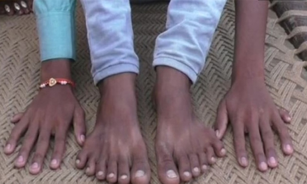 UP Boy Has 12 Fingers  Toes Relatives Want Him Dead-