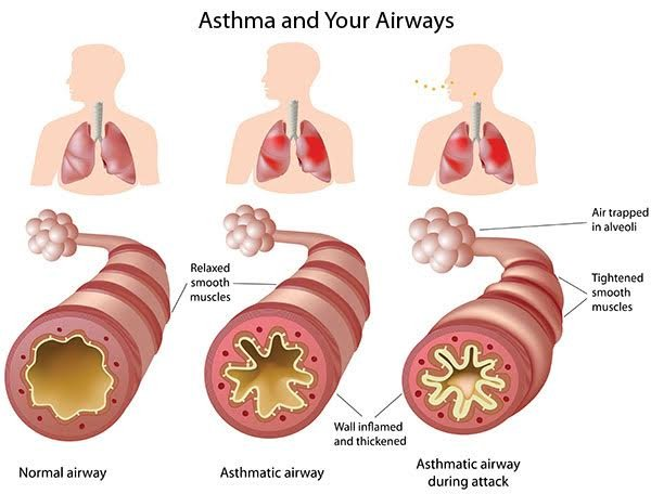 Management Of Asthma In Children-