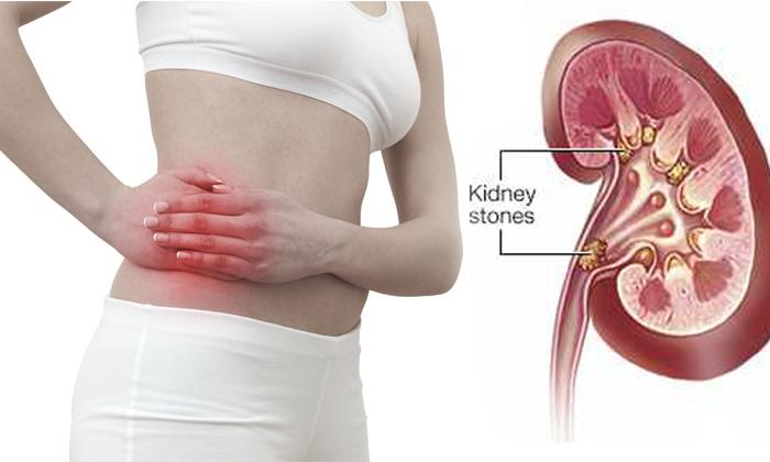 Kidney Stones Symptoms In Your Body--Kidney Stones Symptoms In Your Body-