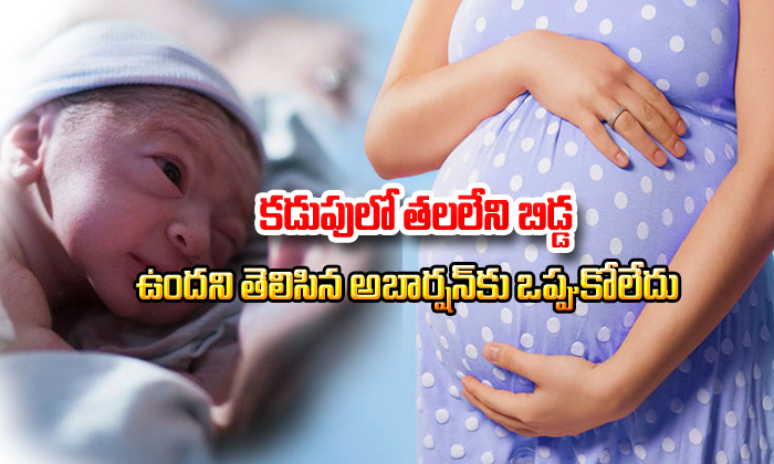 Head Less Baby In Stomach But She Did Not Get Abortion- Telugu Viral News Head Less Baby In Stomach But She Did Not Get Abortion--Head Less Baby In Stomach But She Did Not Get Abortion-