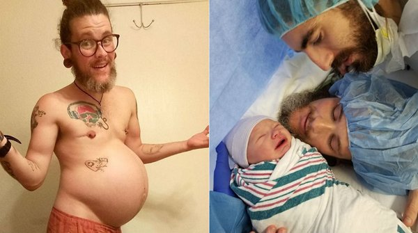 Transgender Man Gives Birth To Baby Boy-Pregnancy