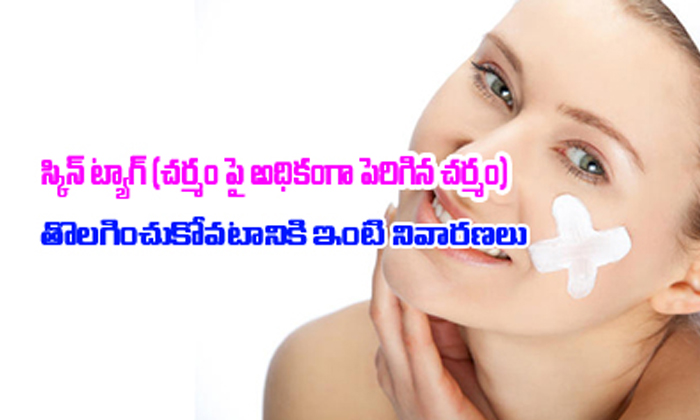 Home Remedies For Skin Tags--Home Remedies For Skin Tags-