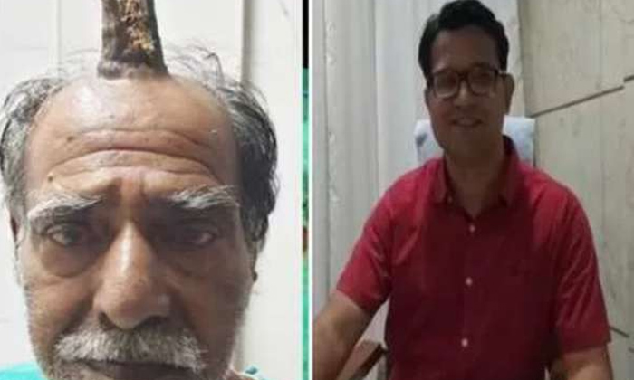 74 Years Old Mp Man Grows Devil\'s Horn After Injury-bhopal,devil Horn,syam Lal Yadav-74 Years Old MP Man Grows Devil's Horn After Injury-Bhopal Devil Syam Lal Yadav