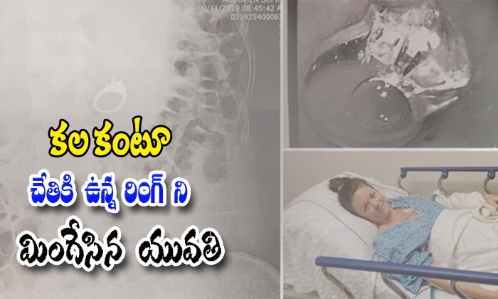 Woman Swallow Engagement Ring During Nightmare-dream Jenna And Babi,endoscope,jenna,woman Swallows Engagement Ring,x Ray-Woman Swallow Engagement Ring During Nightmare-Dream Jenna And Babi Endoscope Jenna Woman Swallows X Ray
