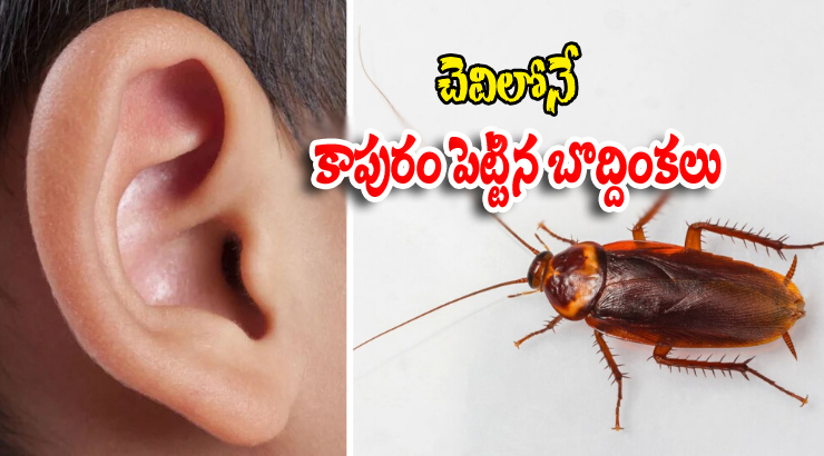 Cockroaches Are Living Inside The Man\'s Ear-telugu Viral News Updates,viral In Social Media-Cockroaches Are Living Inside The Man's Ear-Telugu Viral News Updates In Social Media