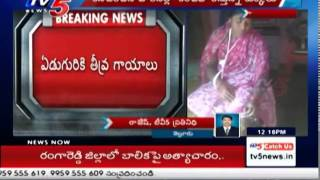 Street Dogs Brutally Attacks In Nellore | 7 Severely Injured : TV5 News